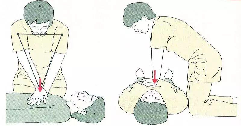 护士游泳救溺水者:跪肿了膝盖,温暖了人心